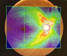 眼底画像 黄斑部と視神経乳頭