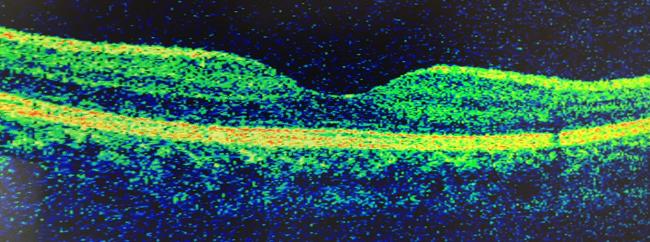 網膜,正常な黄斑部
