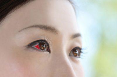 結膜下出血 眼疾患